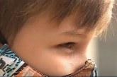 Niño con enfermedad visual degenerativa, pide ayuda para su tratamiento