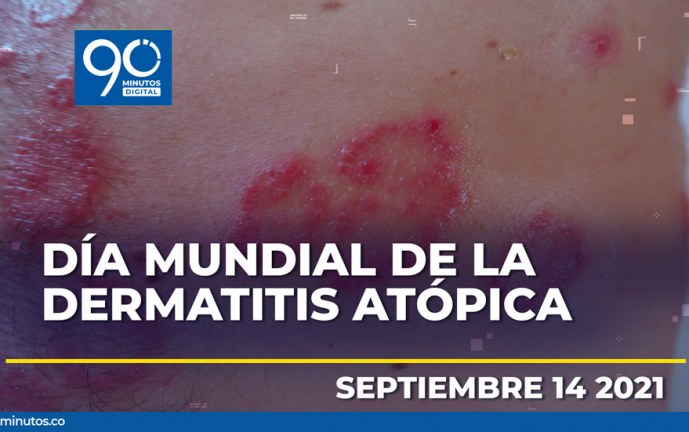 Rastros de la Dermatitis Atópica: más allá de la piel
